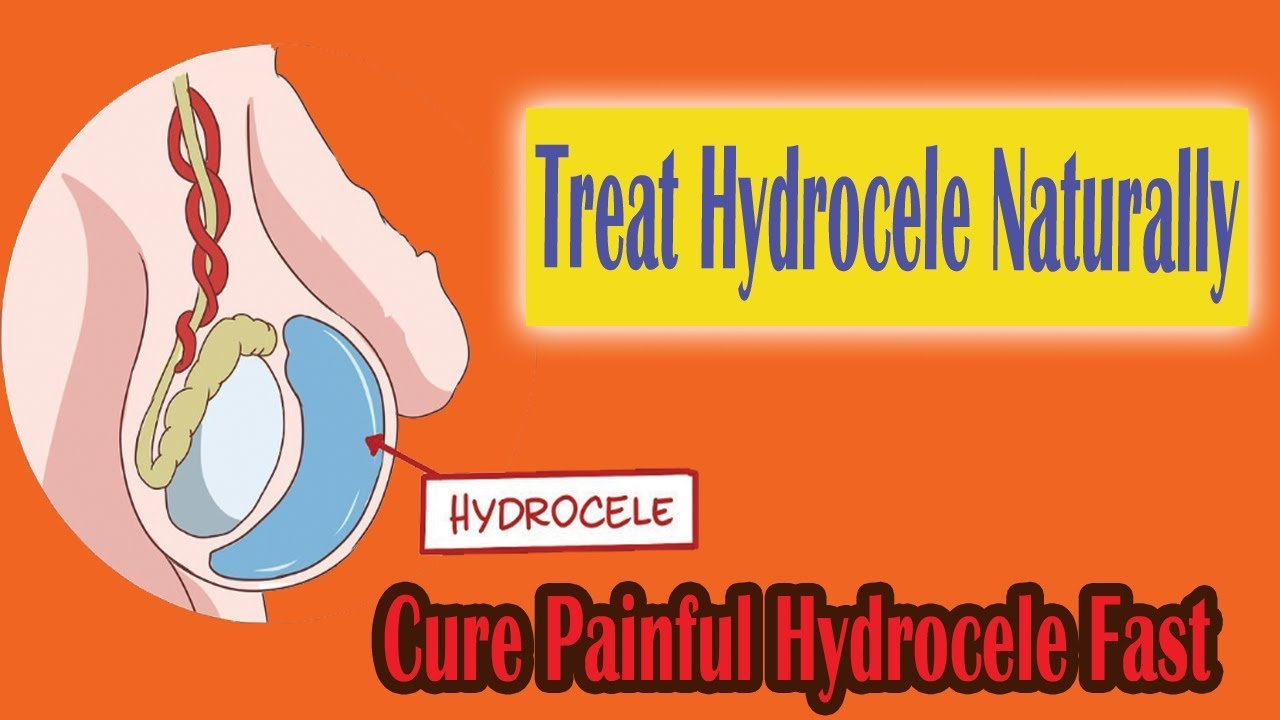 How To Cure Hydrocele Fast Naturally