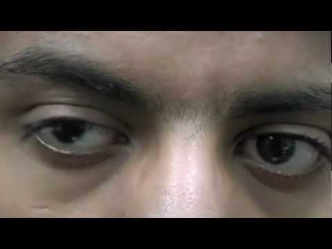 ocular hypertension caused by steroids