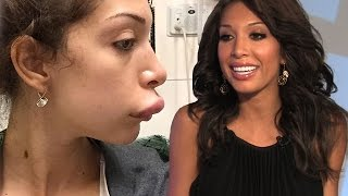 Farrah Abraham on Plastic Surgeon Dreams and Botched Lip Injection