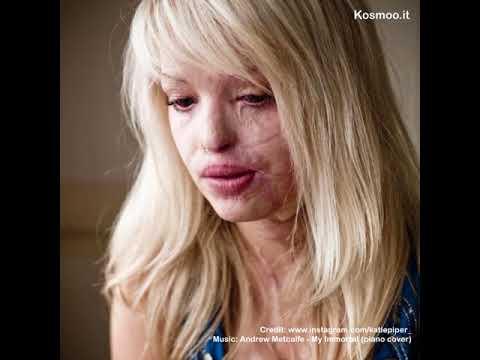 Katie Piper, sfigurata dall'acido. Oggi è una persona nuova