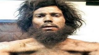 SHOCKING Photo of Randeep Hooda that will Blow your MIND | MUST WATCH