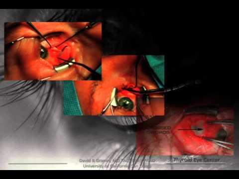Dr. David Granet - Thyroid Eye Disease:  Battle of the Bulge, Part II