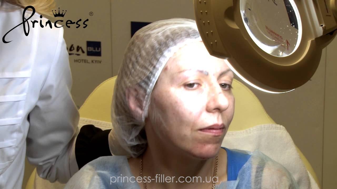 Выравниваем объемы средней трети канюлей и Princess Filler - YouTube