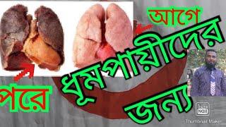 Squamous papilloma jelentése hindi nyelven | Gél Papillor