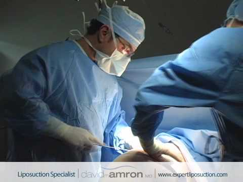Butt Liposuction Surgery Buttocks Lipo Surgeon Dr. David Amron