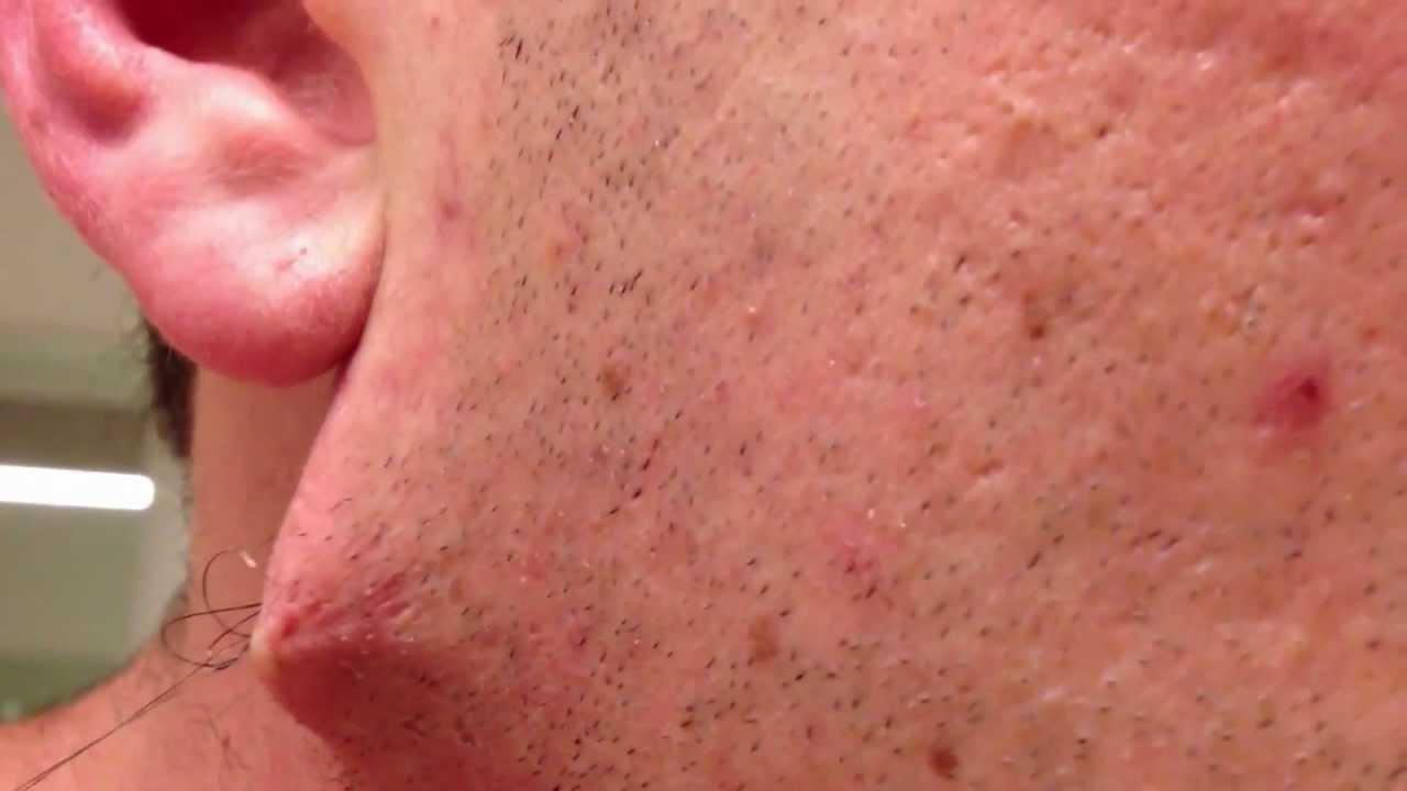 Plus long poil incarné de barbe jamais vu, sous la peau - YouTube