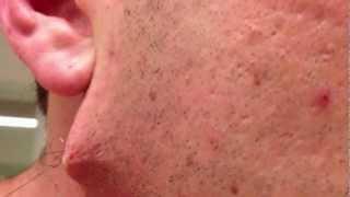 Plus long poil incarné de barbe jamais vu, sous la peau