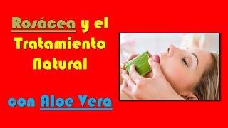 Rosacea Tratamiento Natural Aloe Vera | Sabila para el Acné Rosácea!!!