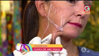 El efecto Nefertiti: borre sus arrugas de forma sencilla