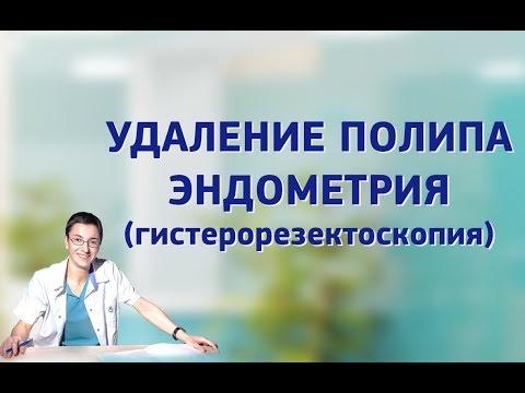 Удаление полипа эндометрия (гистерорезектоскопия).
