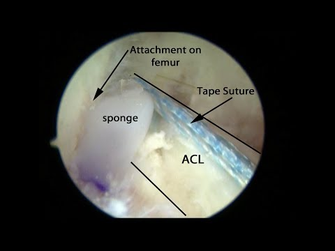 PRESERVE ACL Surgery