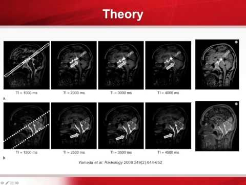 Advances in Neuro MRI: What's in your Neuro Tool Box?