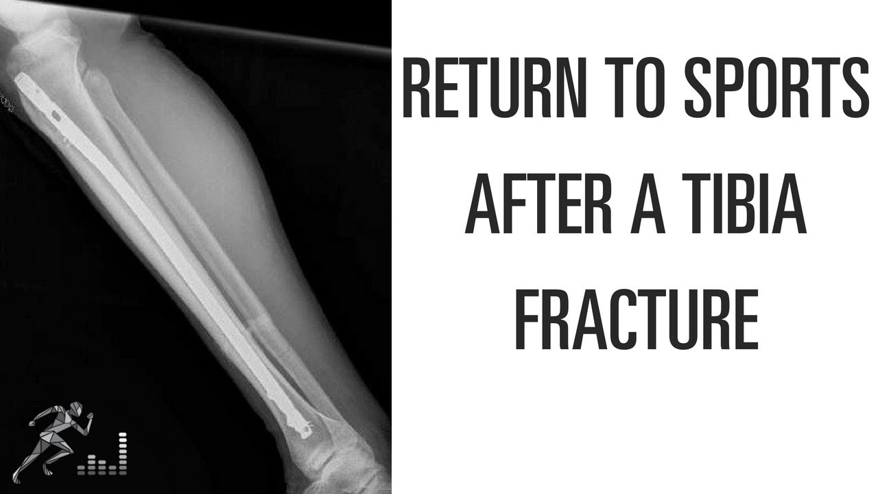Return to sports after a tibia fracture