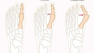 диета при болезни подагра. бандаж для косточки на ноге