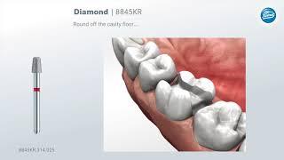 Препарирование зуба под inlay-вкладку или частичную коронку
