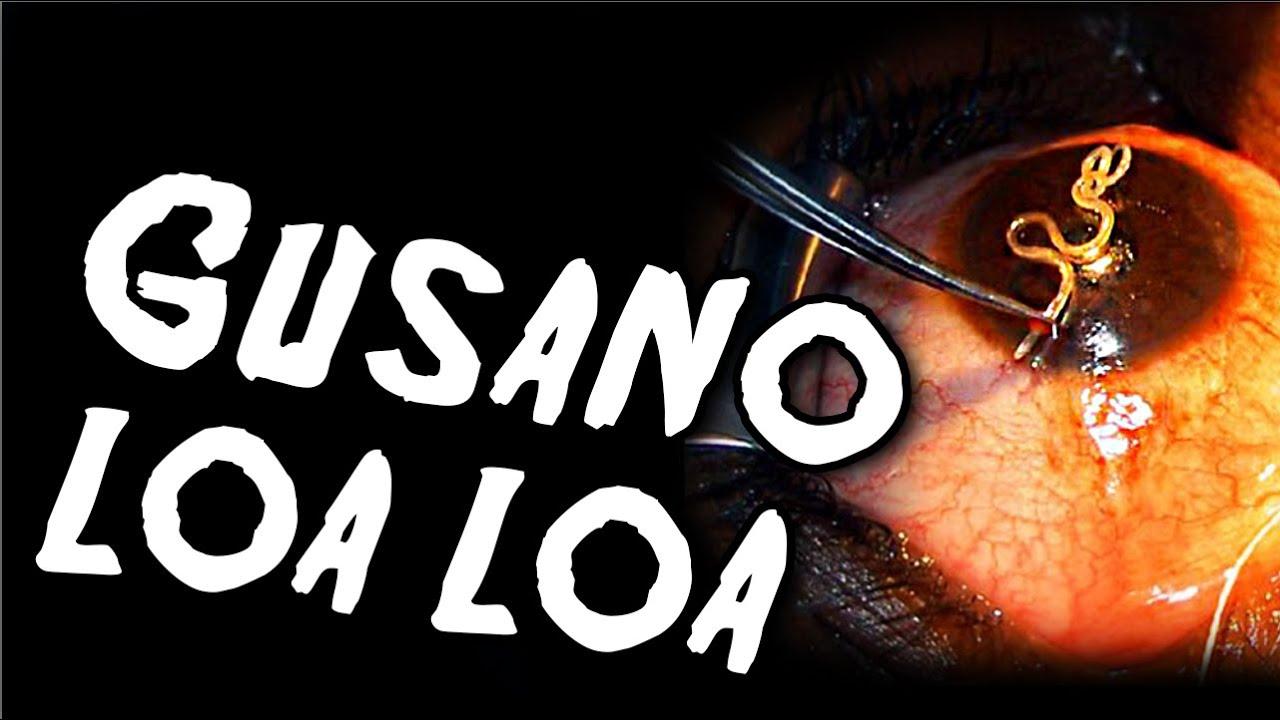 LOA LOA (LOIASIS) - OKAI, TüNETEI éS KEZELéSE - BETEGSÉGEK
