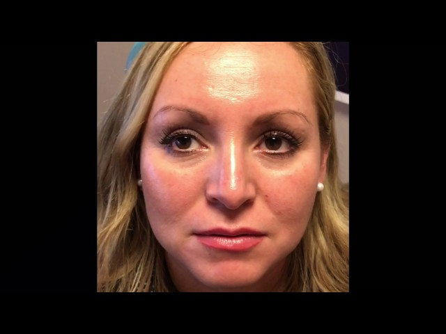 Mole Removal Close Up & Testimonial in Dallas, TX