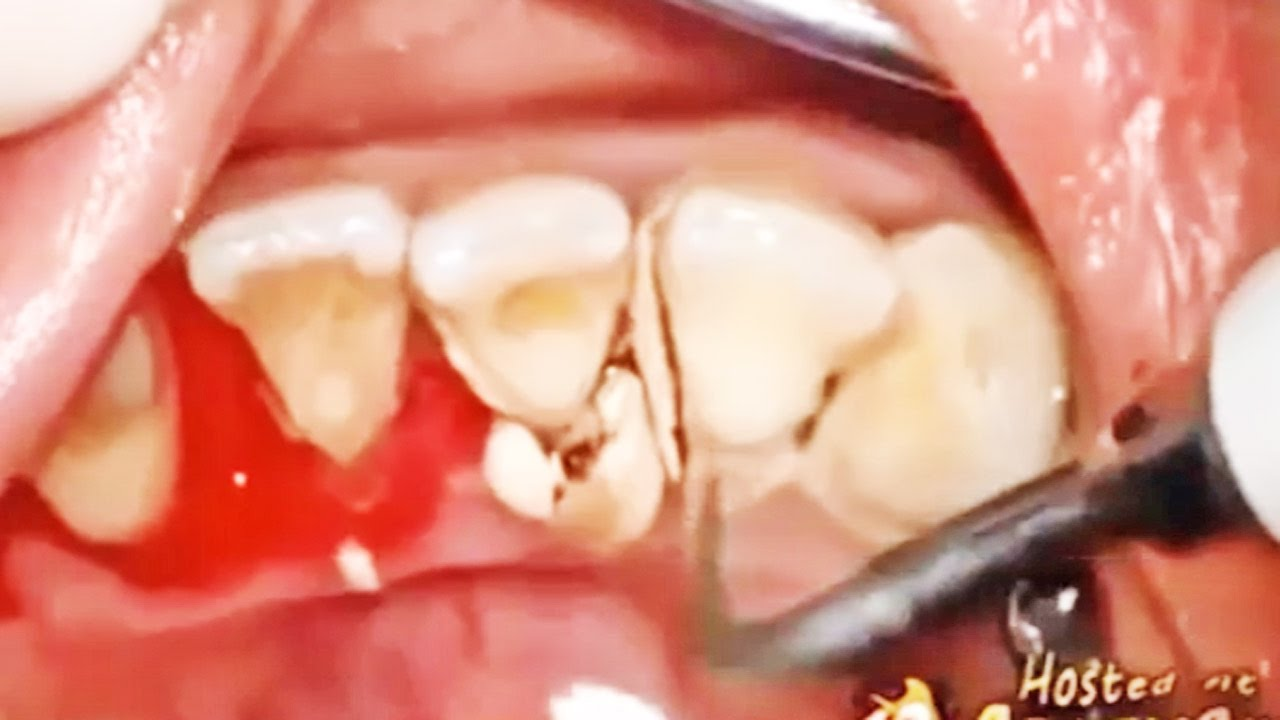 Best Dental Plaque Removal Tartar And Plaque Youtube