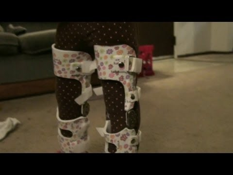 Putting On My Daughters New Leg Braces (and walking update!)