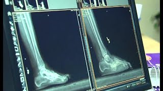 A Better Look at Ankle Surgery Video
