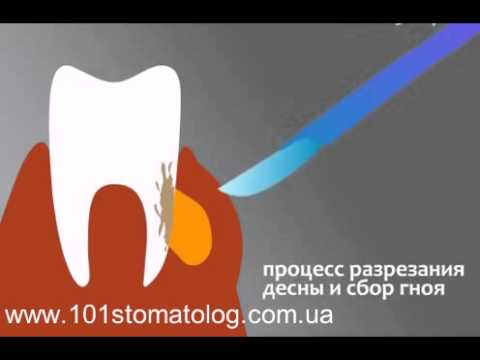 Бесплатная консультация стоматолога —
