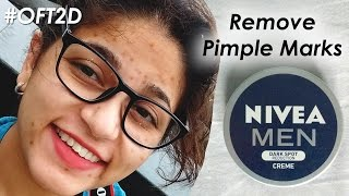 How to Remove Pimple Marks w/Nivea Men Dark Spot Reduction Cream | Review #OFT2D