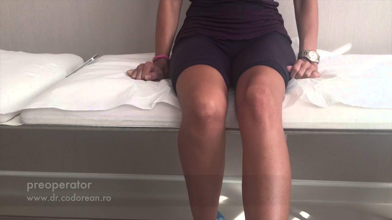 medicament pentru repararea genunchiului semne de inflamație a șoldului la femei