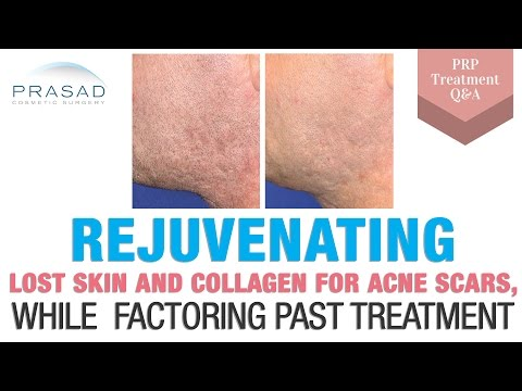 Acne Scar Treatment - the Importance of Replacing Lost Collagen and Releasing Deep Scars