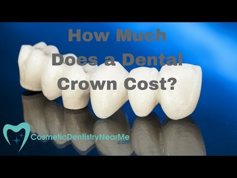 How Much Does a Dental Crown Cost?