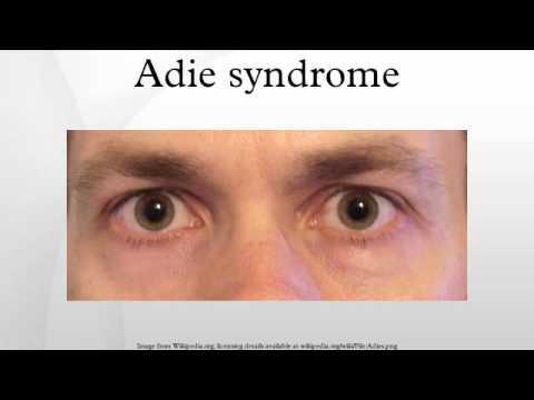 Adie syndrome - YouTube