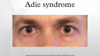 Adie syndrome