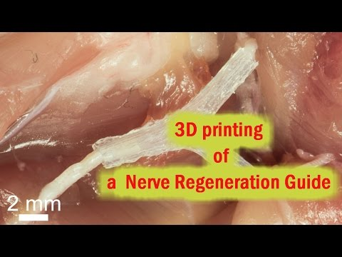 3D-Printed Guide helps regrow complex Nerves after injury