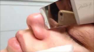 SALON IX  Ultrazvukove cistenie pleti   Skin Scrubber