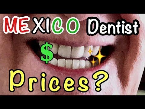 Cost Of Dental Work.  Ajijic Mexico.