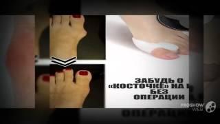 """торчит косточка на ноге      - рекомендую лечение hallux valgus косточки(http://rabotadoma.luzani.ru/valgus/ Средство """"Valgus Pro"""" с огромной скидкой Фиксатор """"Valgus Pro"""" от компании,фирмы"""