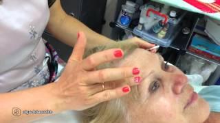 Как работает Instanly Agelesse, мнение косметолога Варна