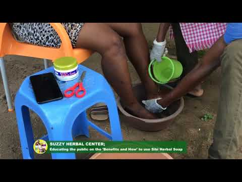 Husband and Wife: Healing cracked feet with Sibi Herbal Soap pt 1
