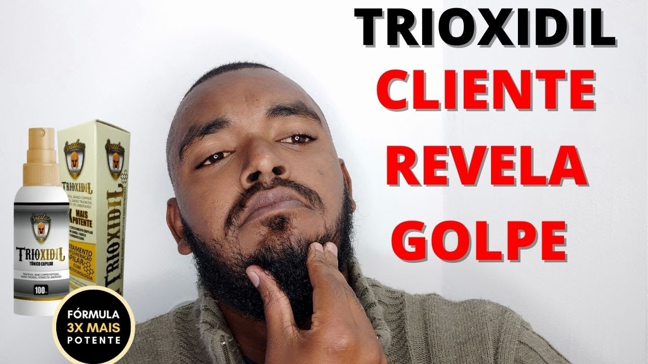 trinoxidil funciona
