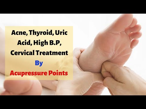 Acupressure Points - Acne, Thyroid, Uric Acid, High B.P, Cervical