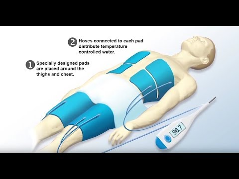 Therapeutic hypothermia: Cool treatment helps cardiac arrest patients