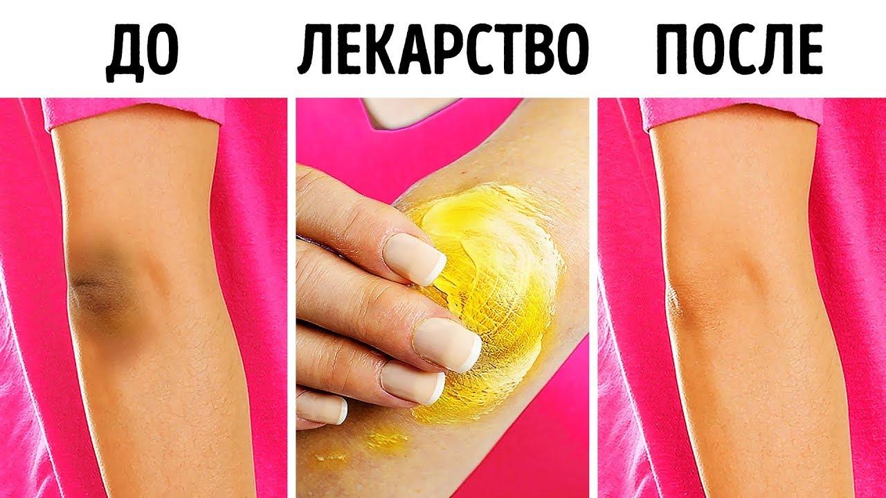 Способы осветлить колени и локти