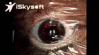 Bilateral LASIK- Dr. Nikos Tsioumas
