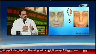 الناس الحلوة | التقنيات الحديثة فى جراحات تجميل الأنف مع د.محمد أبوزيد