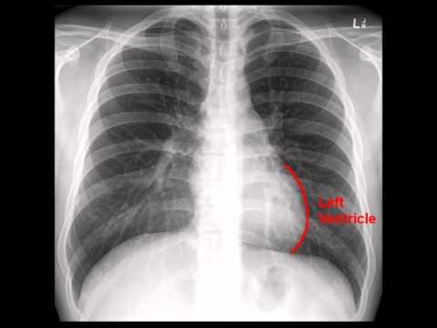 Chest X-Ray (CXR) Analysis in a Nutshell