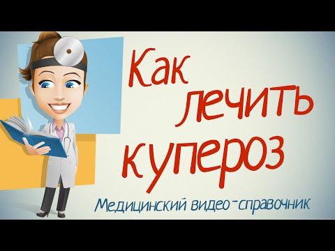 Купероз на лице – лечение (препараты)