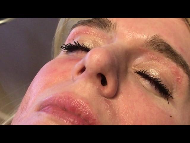 Rhinoplasty Incision HD 2X CloseUp Video in Dallas, TX