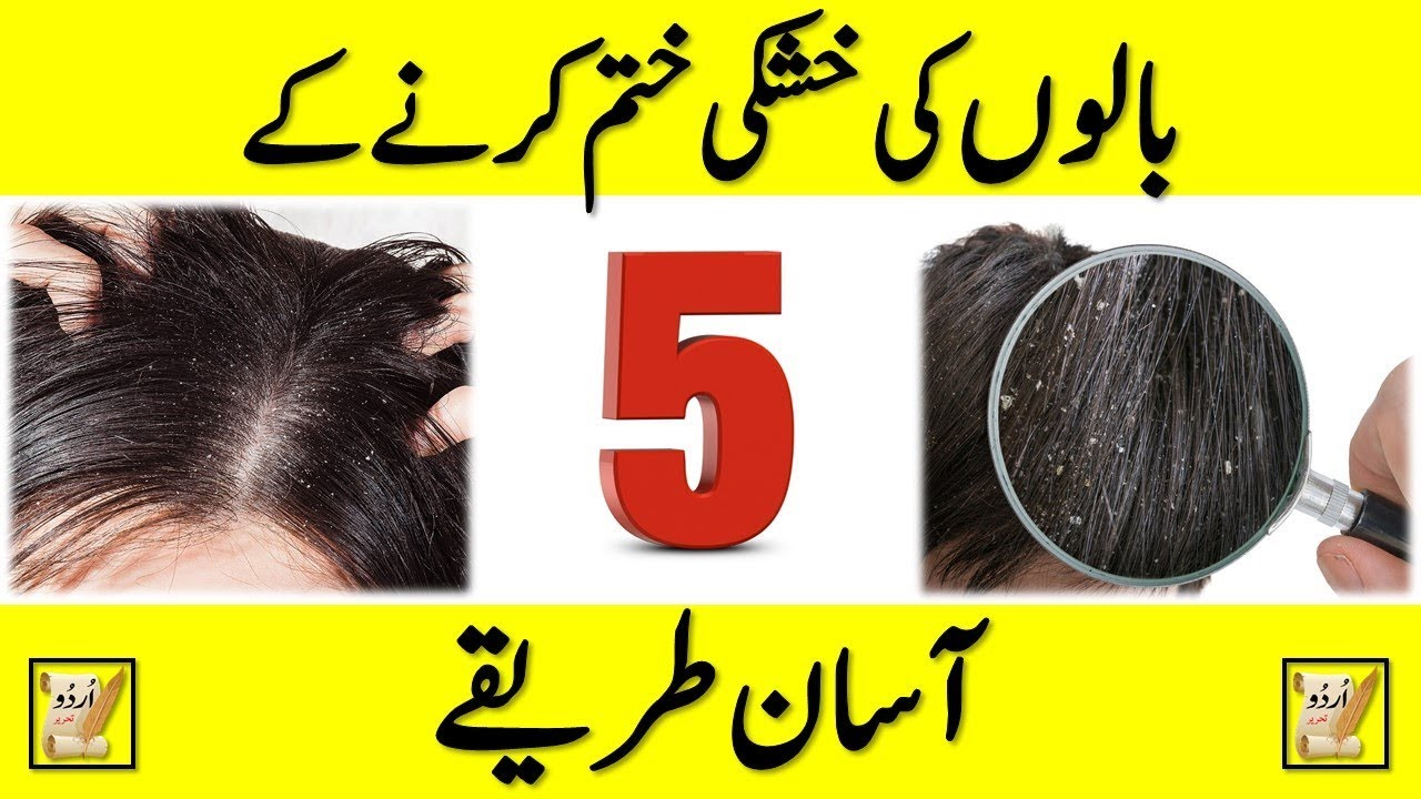 Communication on this topic: 5 Ways to Fight Dandruff, 5-ways-to-fight-dandruff/