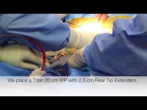 Atlanta Minimally Invasive Titan Penile Implant with Dr Hakky SUHD 4K