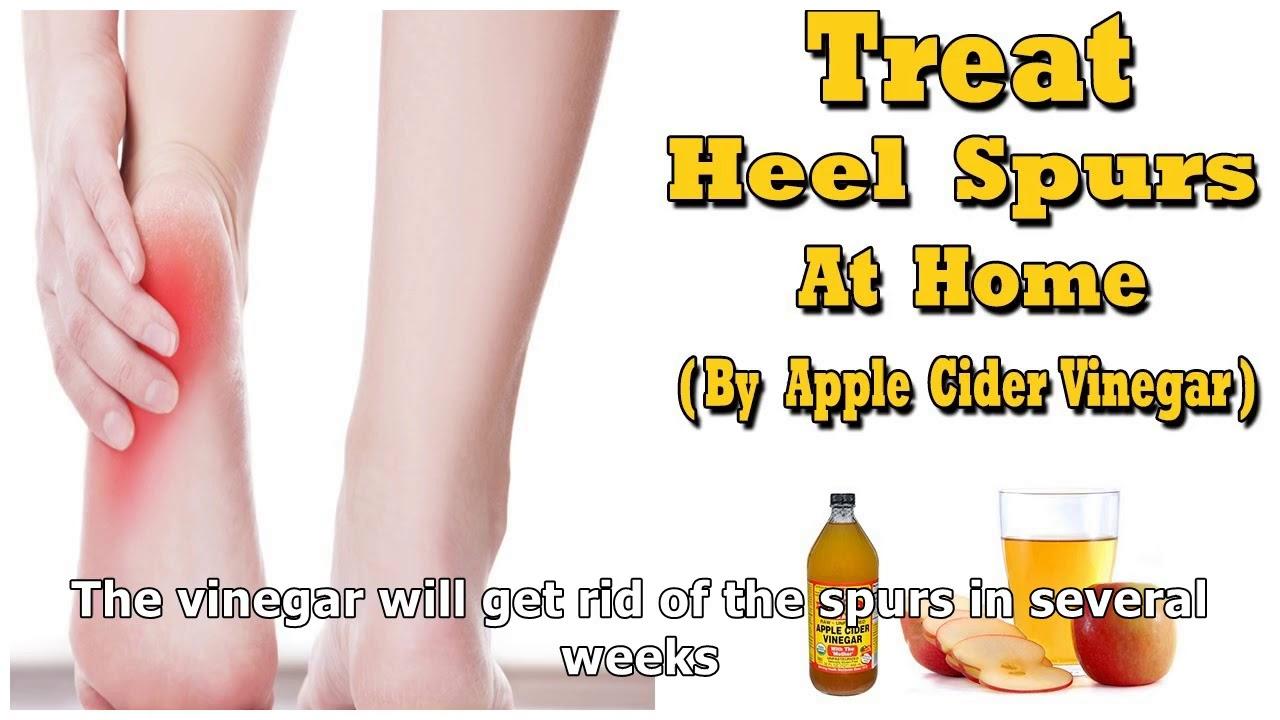apple cider vinegar for heel spurs