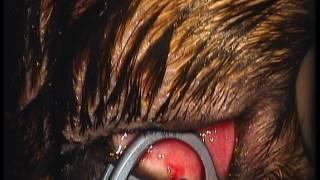 Удаление эктопической ресницы